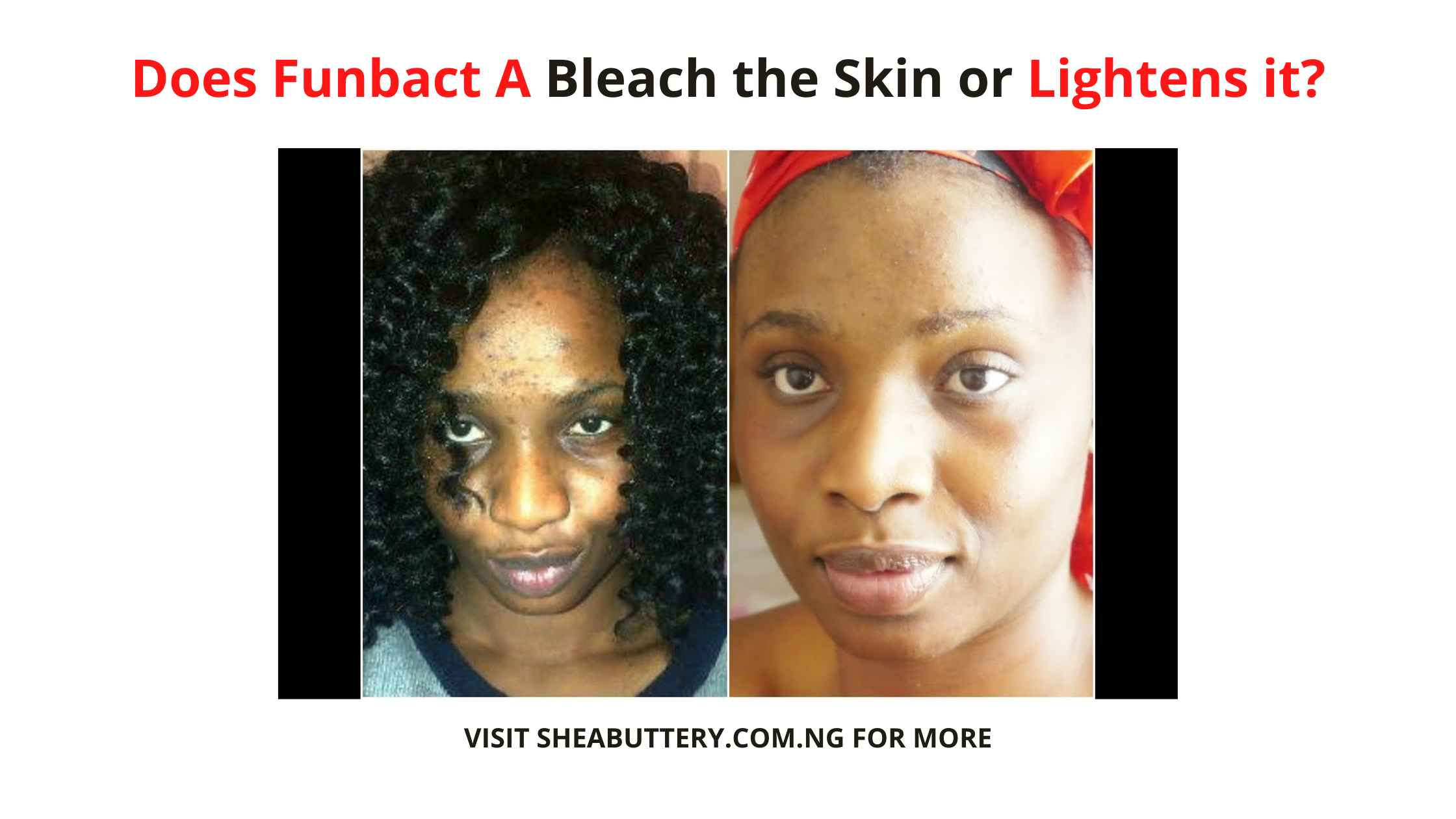 Does Funbact A Bleach the Skin